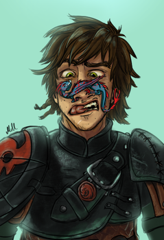 A Hiccup by PaleRiders