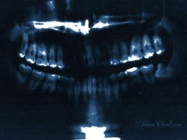 teeth 1024x768 by soliton