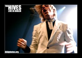 the hives in dublin by aaaphotos