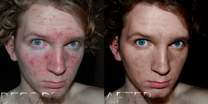 Acne Before and After by J4MESG