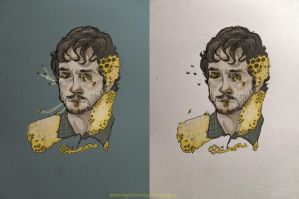 Hannibal : Will Graham: Takiawase by 666solitaryman