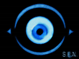 Swollen Eyeball Network Screen by Scypod