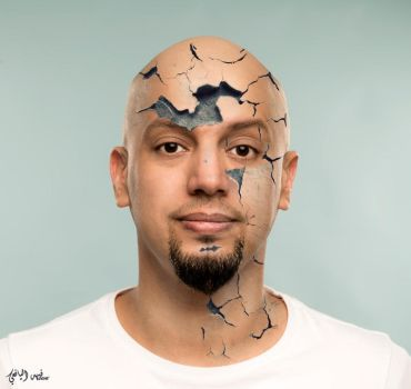Dry Face by Fahad-qtr