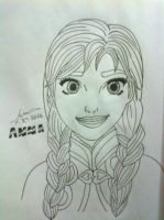 Anna Of Frozen by Outbreak2105