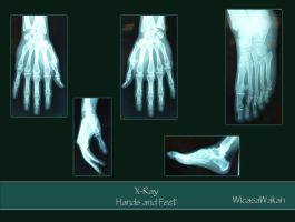 Xray hands and feet set by Wicasa-stock