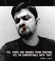 Bruises from Fighting by karthik82