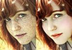 Freckles removed by ArmandtvandenBerg
