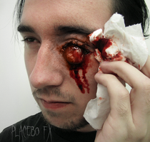 Eye Trauma 2 by PlaceboFX