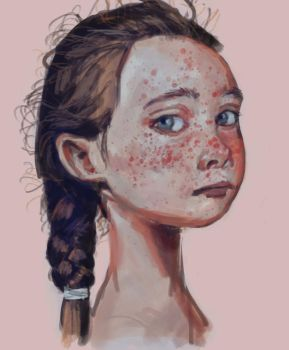Freckles by neoowl