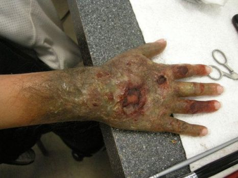 zombie hand by beckawalley